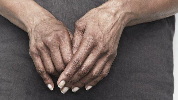 hands with arthritis
